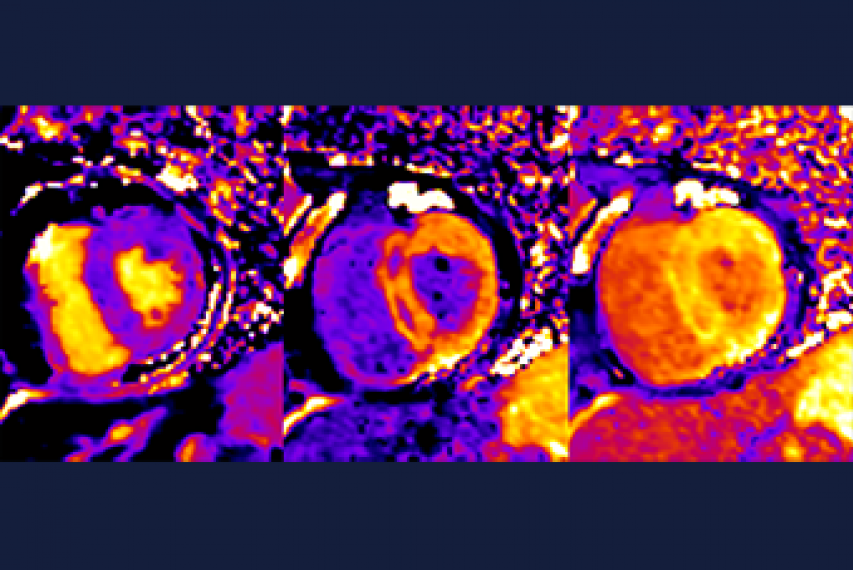 Sarcoid Fibrosis Image